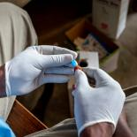 HIV test being administered